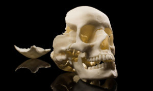 3D printed skull from the lab of Ahmed Ghazi
